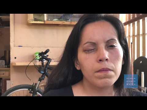 Chile: Llamado urgente a una reforma policial tras las protestas